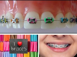A collage of photos illustrating how coloured elastics work and how they can personalize the wearing of braces