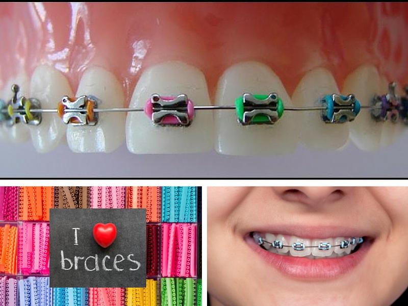 Milton Orthodontics Braces Milton Orthodontics